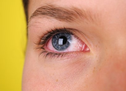 Red Eyes can be a sign of Aging Faster
