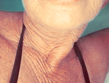 Exercises To Eliminate Wrinkly Turkey Neck
