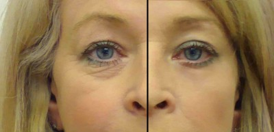 How to make Under Eye Bags disappear in Seconds with MakeUp VIDEO