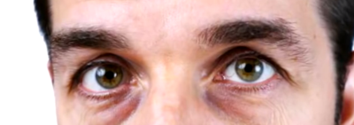 How to cure puffy Eyes VIDEO