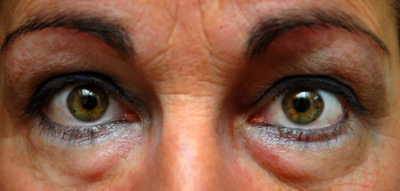 Tips against dark circles and wrinkles under the eyes