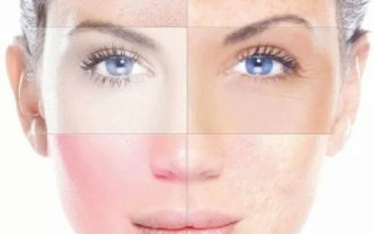 How to deal with Skin Spots?