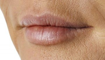 How To Prevent Wrinkles on Your Upper Lip