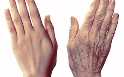 How to prevent and treat wrinkles in your hands